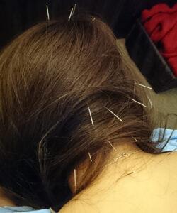 頭スッキリ鍼灸&整体